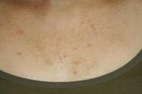 マラセチア 毛 包 炎